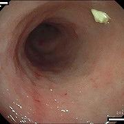 炎症性腸疾患 IBD