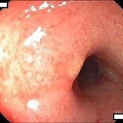 重度の低アルブミン血症による腹水がみられた症例の十二指腸